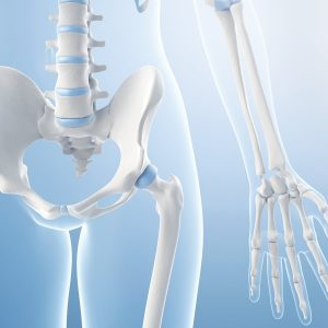 Ask the experts: How do I prevent osteoporosis?