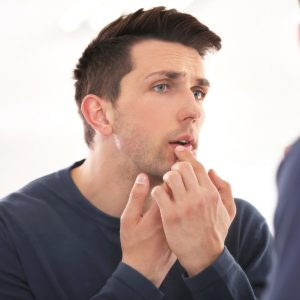 Cold sores – causes, treatment and myths