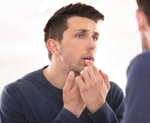 Man examining face in the mirror. touching a cold sore