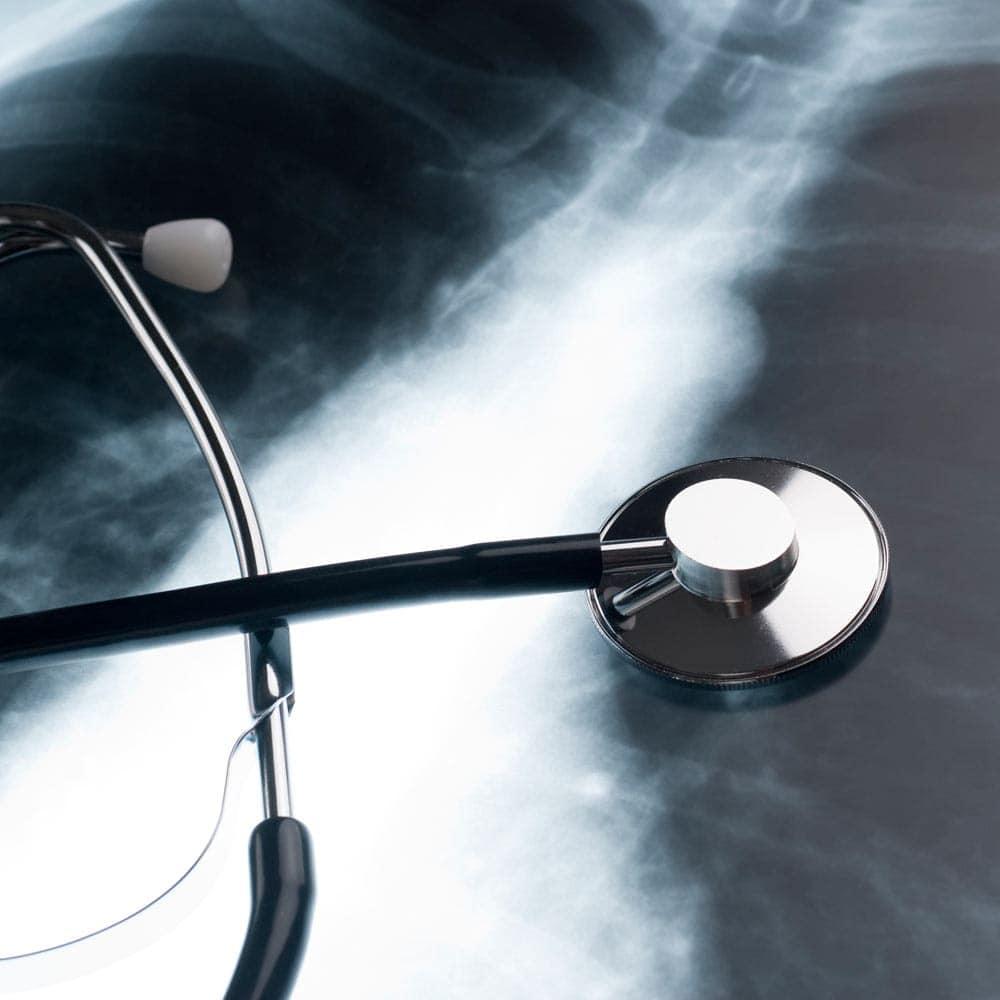 Global event raises awareness of chronic obstructive pulmonary disease