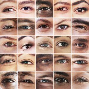 Age-related macular degeneration