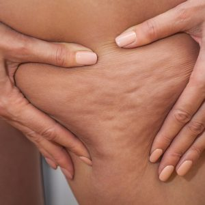 Fact or fiction: Cellulite is a build-up of toxins from a bad diet