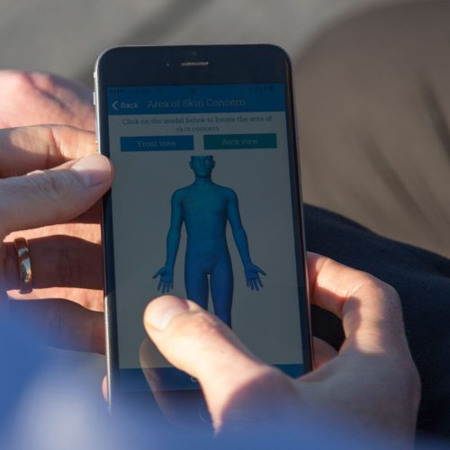 New app aids early detection of skin cancer