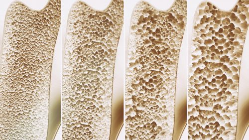 Gut health and osteoporosis under investigation