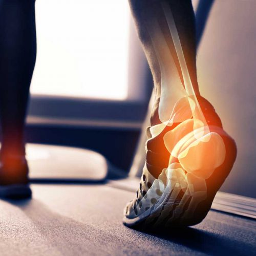 Osteoporosis: How to have strong, healthy bones